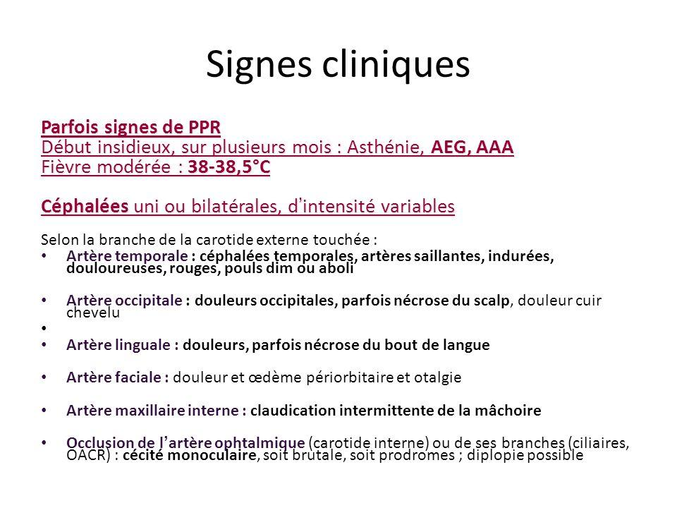 Signes cliniques Parfois signes de PPR Début insidieux, sur plusieurs mois : Asthénie, AEG, AAA Fièvre modérée : 38-38,5°C Céphalées uni ou bilatérale