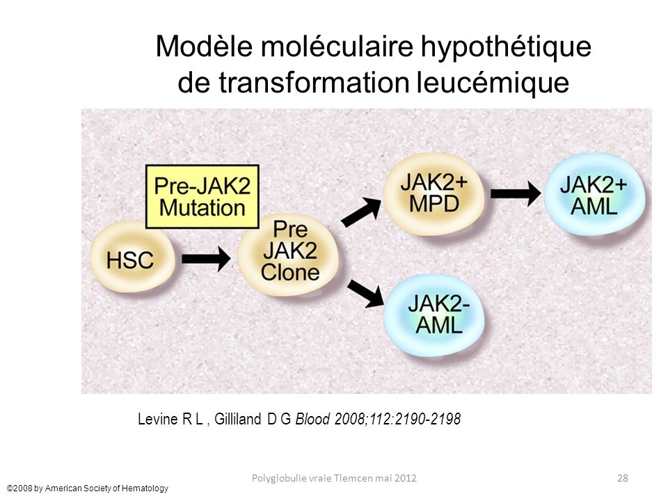 ©2008 by American Society of Hematology 28Polyglobulie vraie Tlemcen mai 2012 Levine R L, Gilliland D G Blood 2008;112:2190-2198 Modèle moléculaire hy