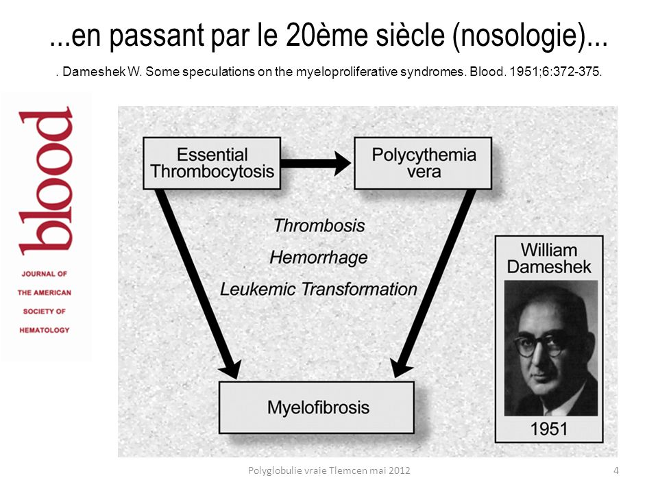 Bibiographie succinte G.Finazzi, T. Barbui. How I treat patients with polycythemia vera.
