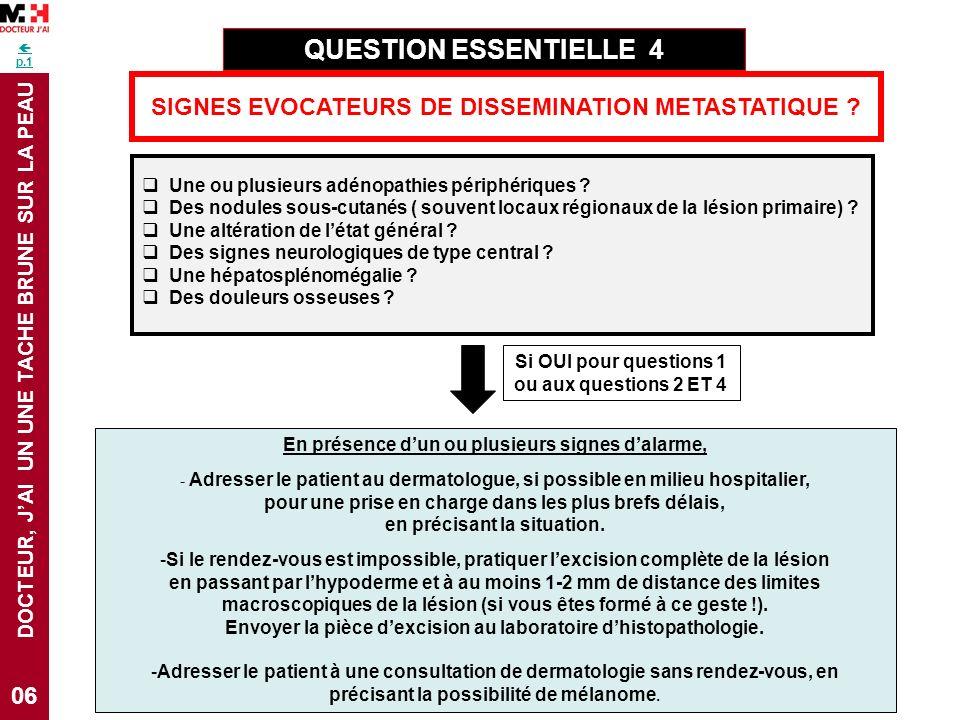 DOCTEUR, JAI UN UNE TACHE BRUNE SUR LA PEAU p.1 06 SIGNES EVOCATEURS DE DISSEMINATION METASTATIQUE ? QUESTION ESSENTIELLE 4 Une ou plusieurs adénopath