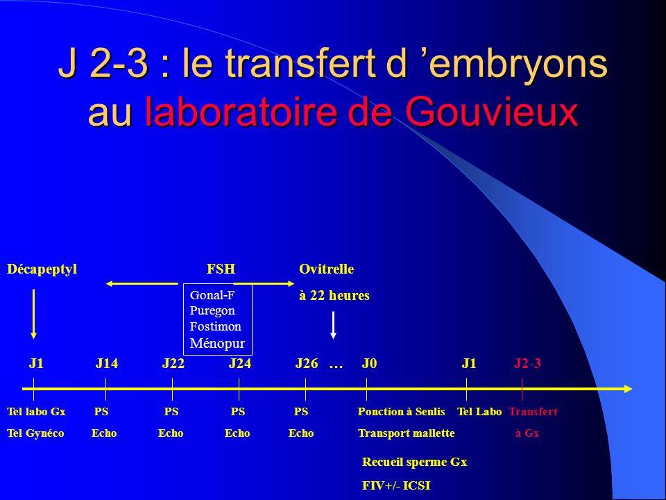J 2-3 : le transfert d embryons au laboratoire de Gouvieux DécapeptylFSH Ovitrelle à 22 heures Tel labo Gx PS PS PS PS Ponction à Senlis Tel Labo Tran