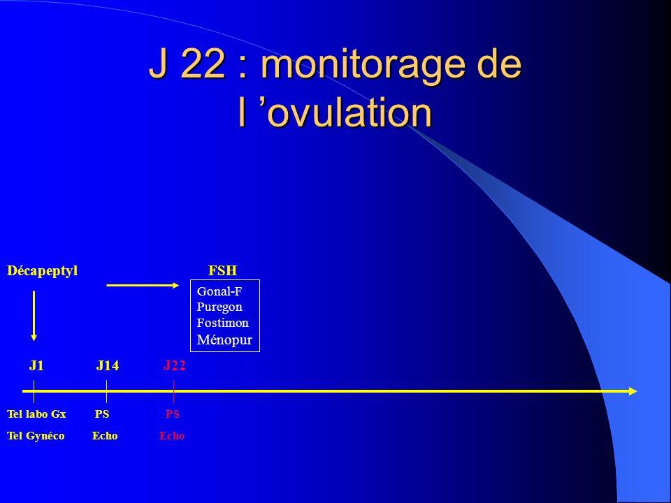 J 22 : monitorage de l ovulation DécapeptylFSH Tel labo Gx PS PS Tel Gynéco Echo Echo Gonal-F Puregon Fostimon Ménopur J1J14J22