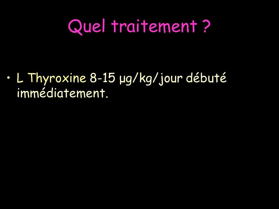 Quel traitement ? L Thyroxine 8-15 μg/kg/jour débuté immédiatement.