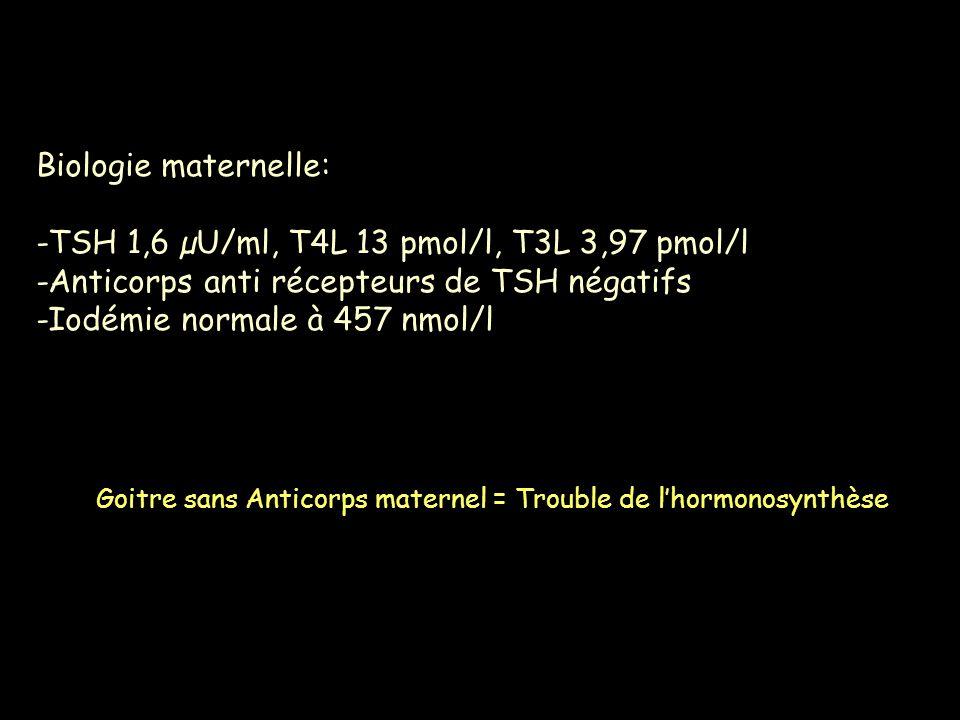 Biologie maternelle: -TSH 1,6 µU/ml, T4L 13 pmol/l, T3L 3,97 pmol/l -Anticorps anti récepteurs de TSH négatifs -Iodémie normale à 457 nmol/l Goitre sa