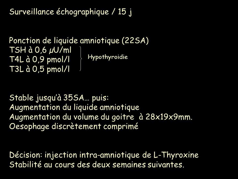 Surveillance échographique / 15 j Ponction de liquide amniotique (22SA) TSH à 0,6 µU/ml T4L à 0,9 pmol/l T3L à 0,5 pmol/l Stable jusquà 35SA… puis: Au