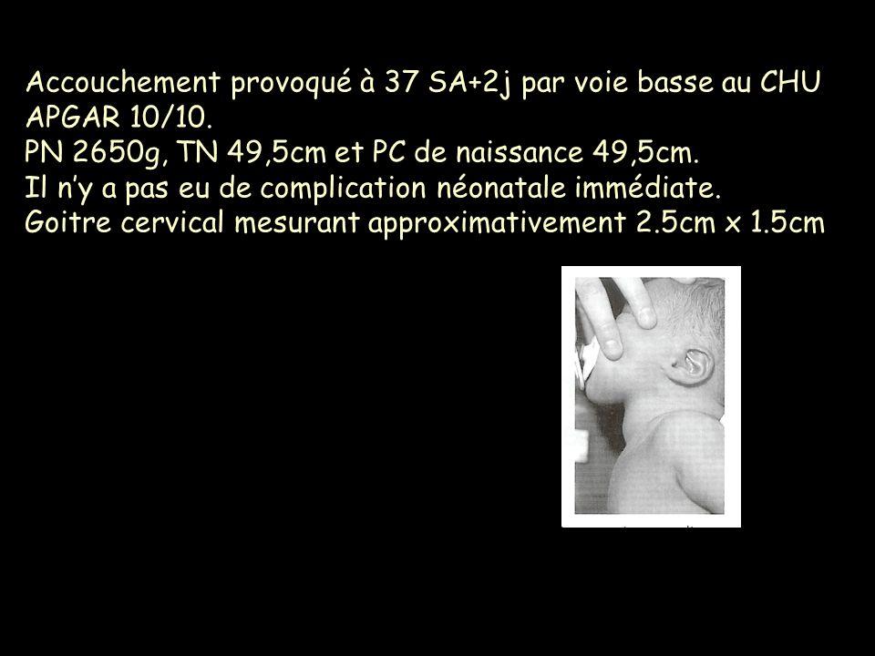 Accouchement provoqué à 37 SA+2j par voie basse au CHU APGAR 10/10. PN 2650g, TN 49,5cm et PC de naissance 49,5cm. Il ny a pas eu de complication néon