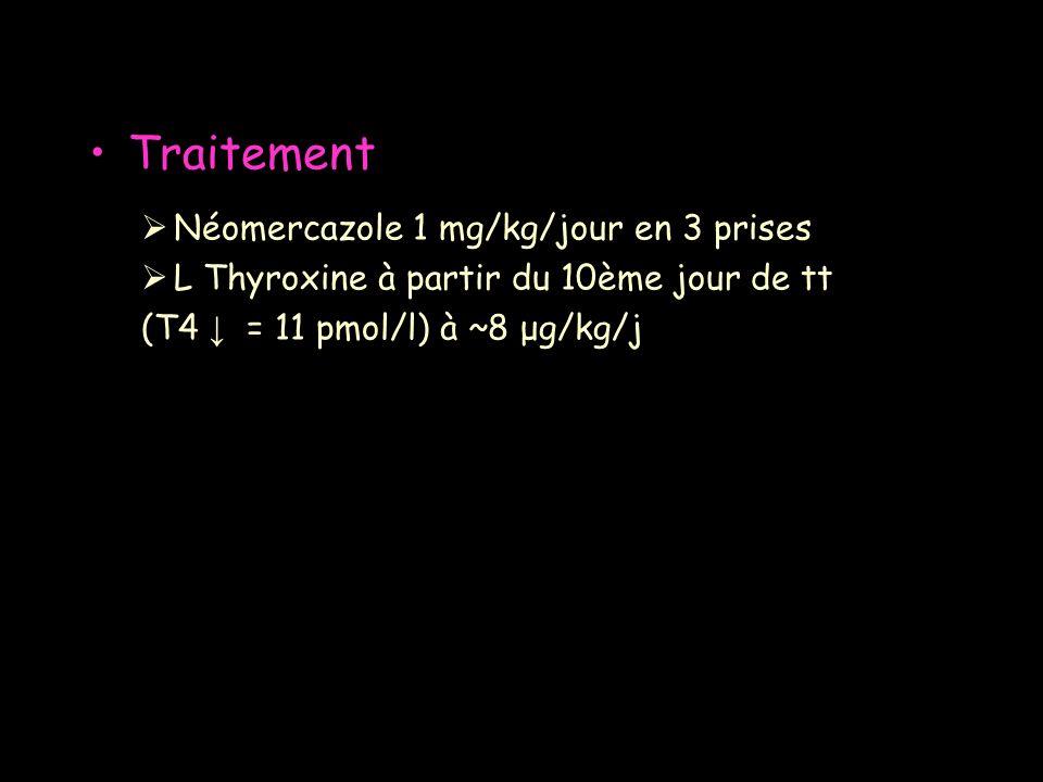 Néomercazole 1 mg/kg/jour en 3 prises L Thyroxine à partir du 10ème jour de tt (T4 = 11 pmol/l) à ~8 μg/kg/j