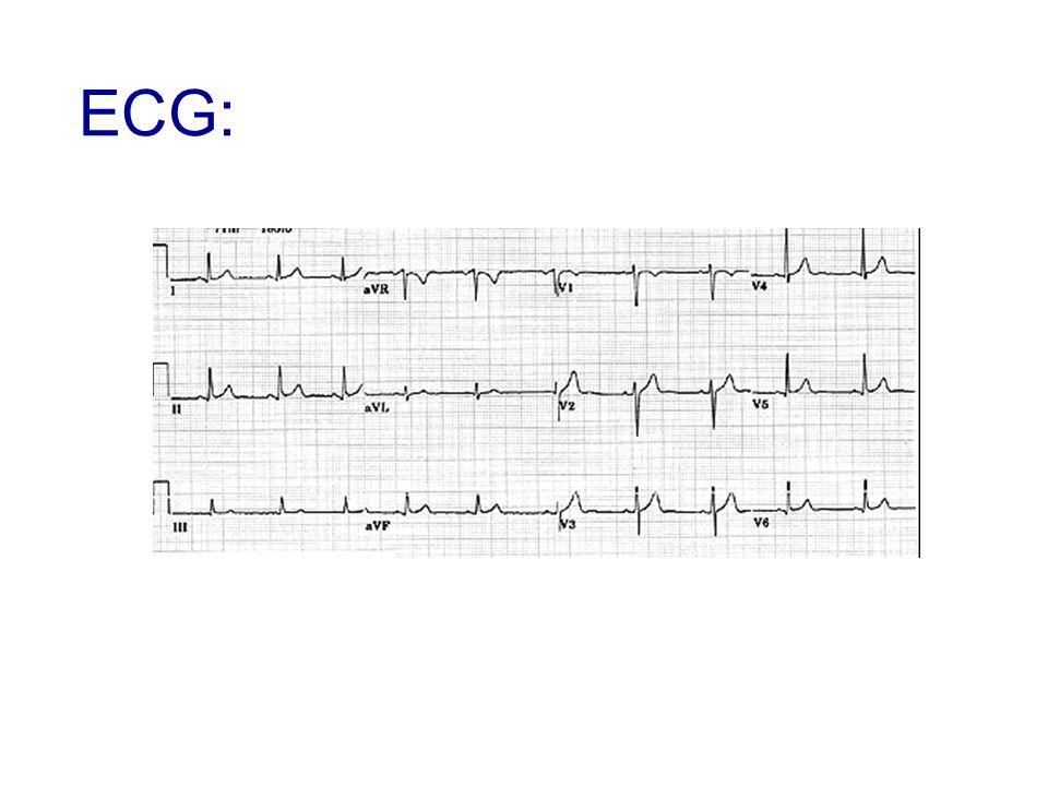 Echocardiographie trans-thoracique: pas dépanchement péricardique, pas de trouble de la cinétique segmentaire Cycle enzymatique: élévation de la troponine à 1 Diagnostique: SCA ST- : décision de coronarographie diagnostique après une dose de charge de 600 mg de clopidogrel VASP à 5%