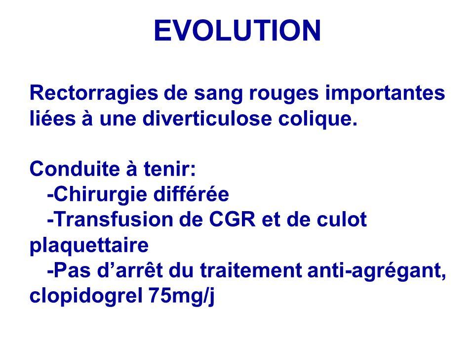 EVOLUTION Rectorragies de sang rouges importantes liées à une diverticulose colique. Conduite à tenir: -Chirurgie différée -Transfusion de CGR et de c