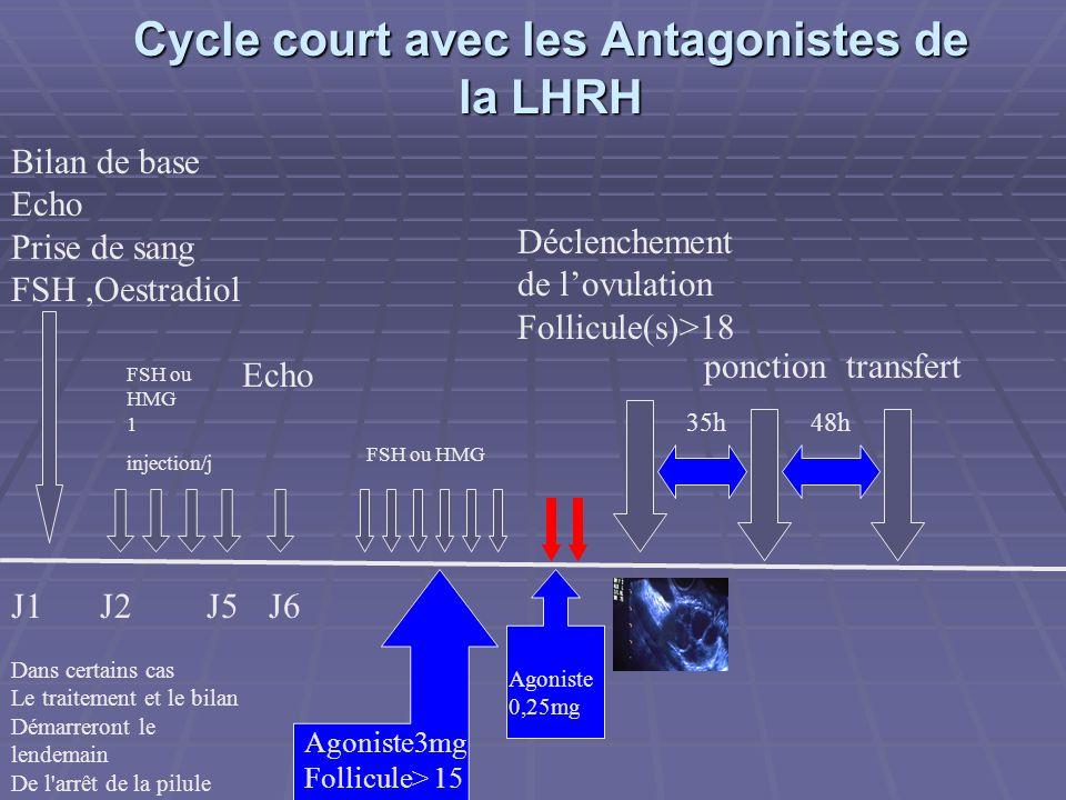 Cycle court avec les Agonistes de la LHRH Cycle court avec les Agonistes de la LHRH J1J2J5 FSH ou HMG 1 injection/j Echo FSH ou HMG J6 Déclenchement de lovulation si Follicule(s) > 18 ponctiontransfert 35h48h Décapeptyl 0,1 mg 1/5 dampoule en SC Bilan de base Echo Prise de sang Fsh,Oestradiol Dans certains cas le traitement et le bilan démarreront le lendemain de l arrêt de la pilule
