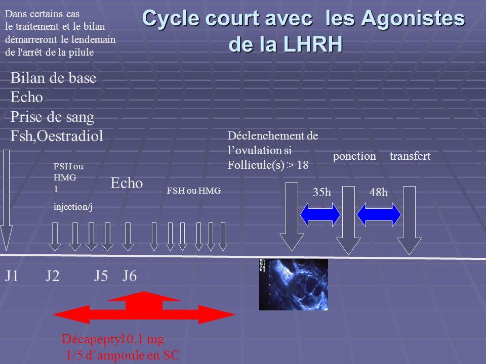 Cycle long avec un Agoniste de la LHRH J1 J15J21 FSH ou HMG 1 injection/j Echo FSH ou HMG Déclenchement de lovulation si Follicule(s)>18 ponctiontransfert 35h48h Période de blocage Décapeptyl 3 Bilan de base Echo Prise de sang Fsh