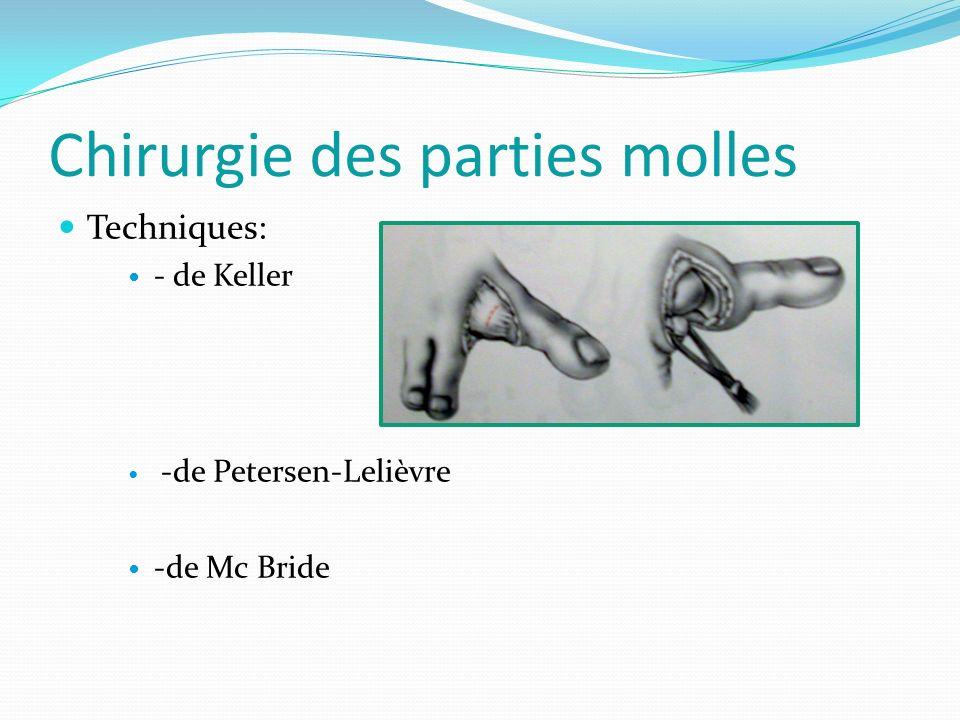 Chirurgie des parties molles Techniques: - de Keller -de Petersen-Lelièvre -de Mc Bride
