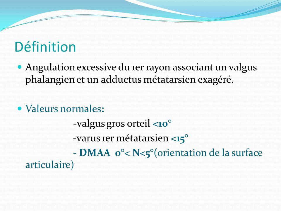 Définition Angulation excessive du 1er rayon associant un valgus phalangien et un adductus métatarsien exagéré.