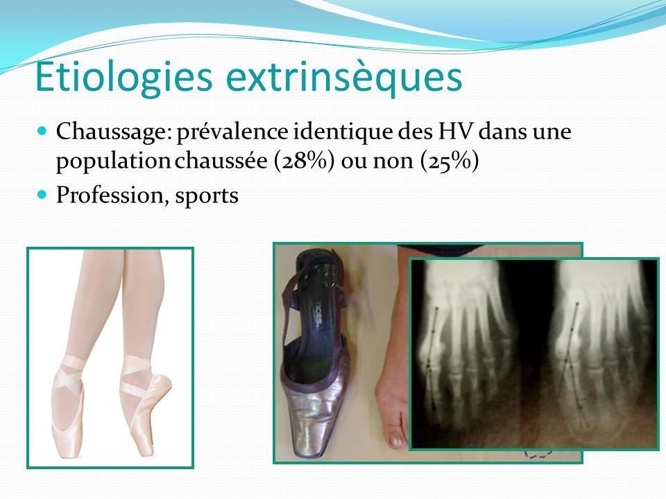 Etiologies extrinsèques Chaussage: prévalence identique des HV dans une population chaussée (28%) ou non (25%) Profession, sports