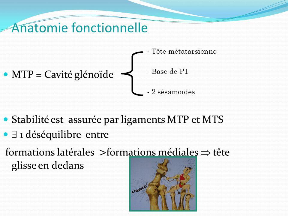 Anatomie fonctionnelle MTP = Cavité glénoïde Stabilité est assurée par ligaments MTP et MTS 1 déséquilibre entre formations latérales > formations médiales tête glisse en dedans - Tête métatarsienne - Base de P1 - 2 sésamoïdes