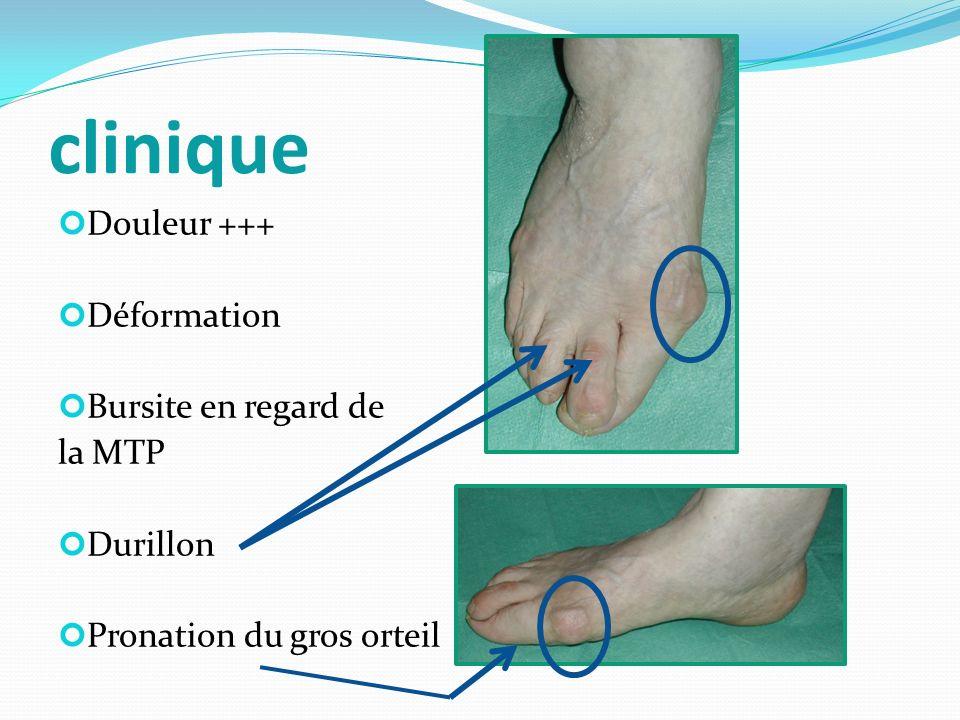 clinique Douleur +++ Déformation Bursite en regard de la MTP Durillon Pronation du gros orteil