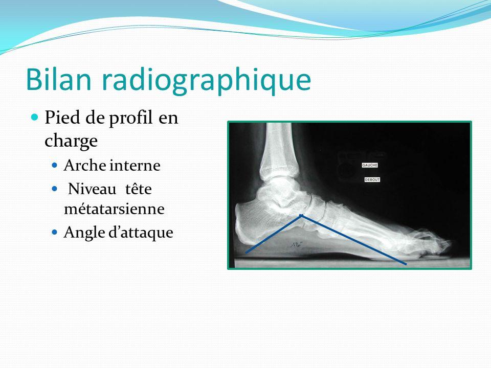 Bilan radiographique Pied de profil en charge Arche interne Niveau tête métatarsienne Angle dattaque