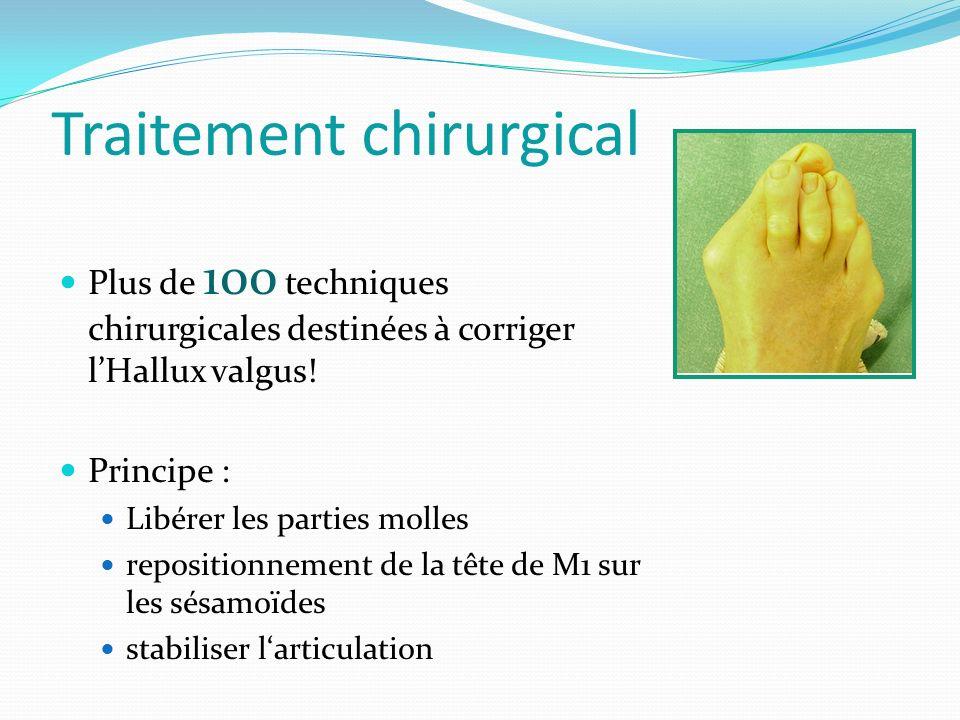 Traitement chirurgical Plus de 100 techniques chirurgicales destinées à corriger lHallux valgus.