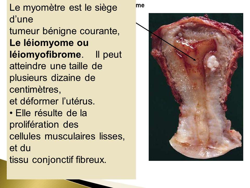 Léiomyome Le myomètre est le siège dune tumeur bénigne courante, Le léiomyome ou léiomyofibrome. Il peut atteindre une taille de plusieurs dizaine de