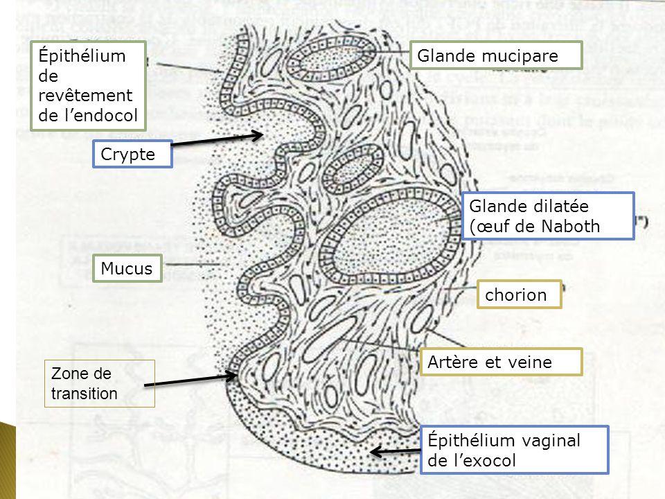 Épithélium vaginal de lexocol Épithélium de revêtement de lendocol Glande mucipare Glande dilatée (œuf de Naboth chorion Artère et veine Crypte Mucus Zone de transition