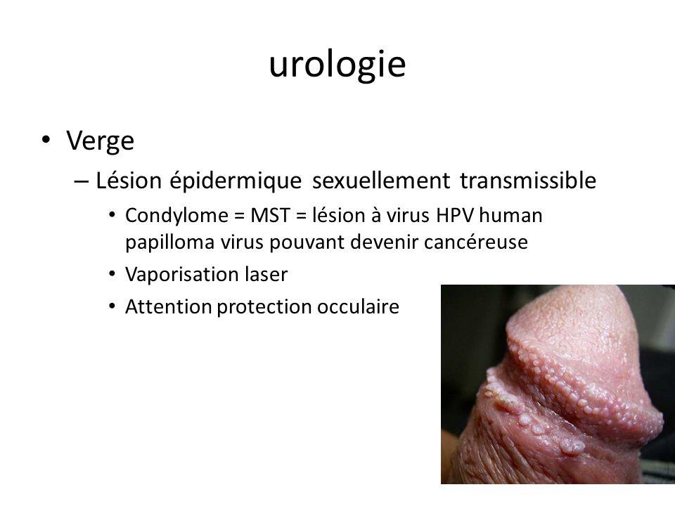 urologie Verge – Lésion épidermique sexuellement transmissible Condylome = MST = lésion à virus HPV human papilloma virus pouvant devenir cancéreuse V