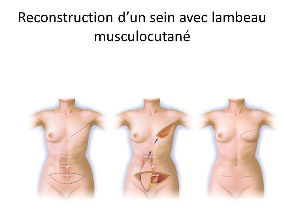 Reconstruction dun sein avec lambeau musculocutané