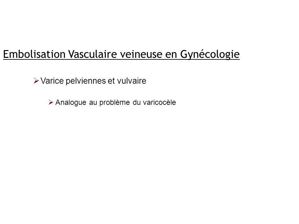 Embolisation Vasculaire veineuse en Gynécologie Varice pelviennes et vulvaire Analogue au problème du varicocèle