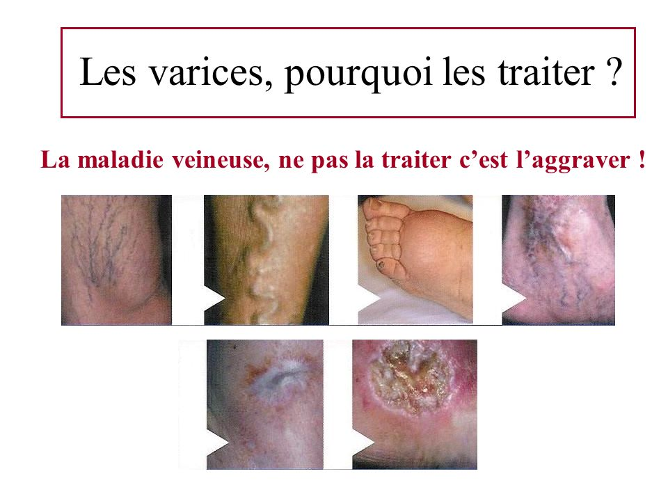 Les varices, pourquoi les traiter ? La maladie veineuse, ne pas la traiter cest laggraver !