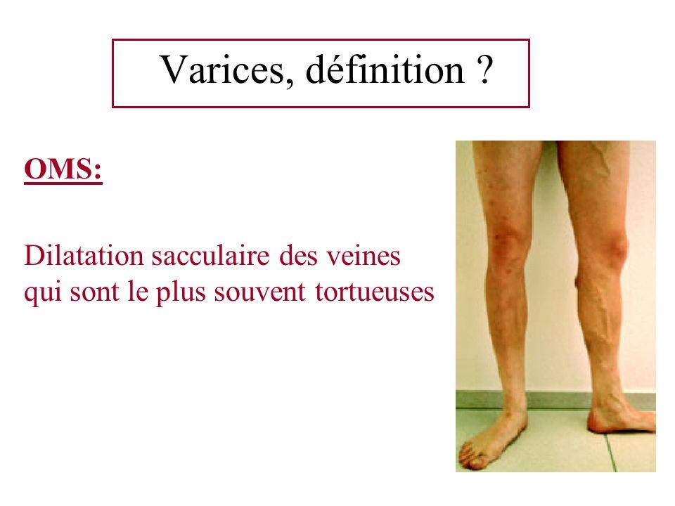 Varices, définition ? OMS: Dilatation sacculaire des veines qui sont le plus souvent tortueuses
