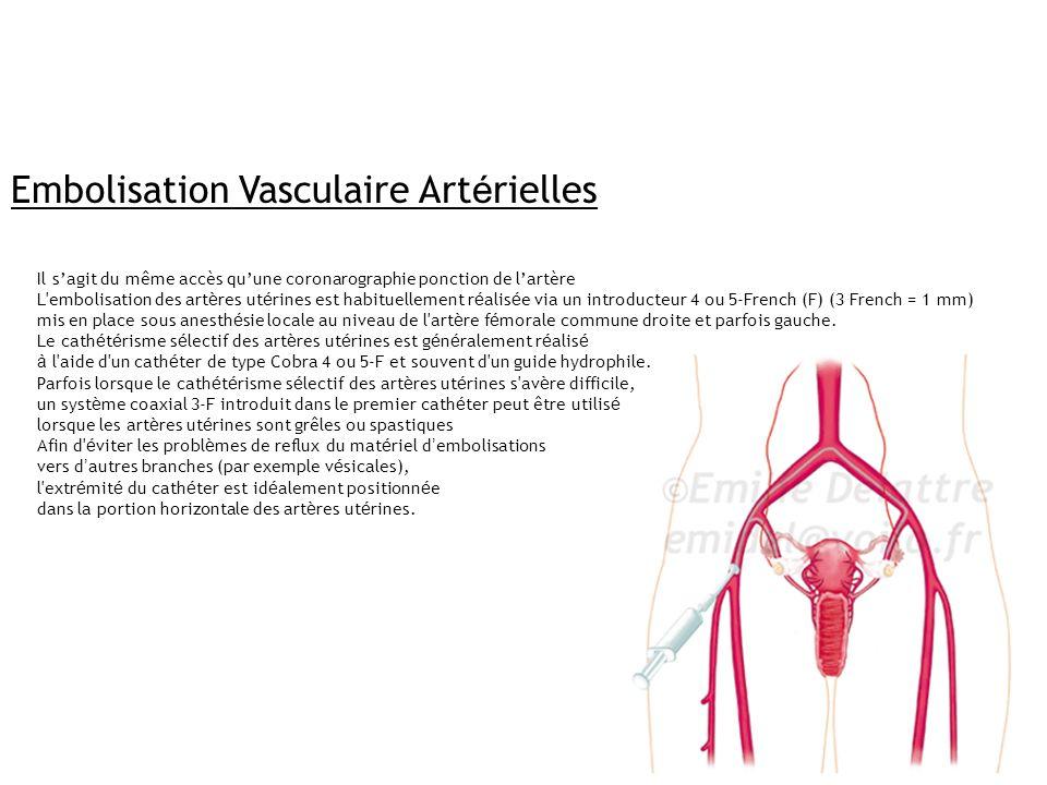 Embolisation Vasculaire Art é rielles Il sagit du même accès quune coronarographie ponction de lartère L'embolisation des art è res ut é rines est hab