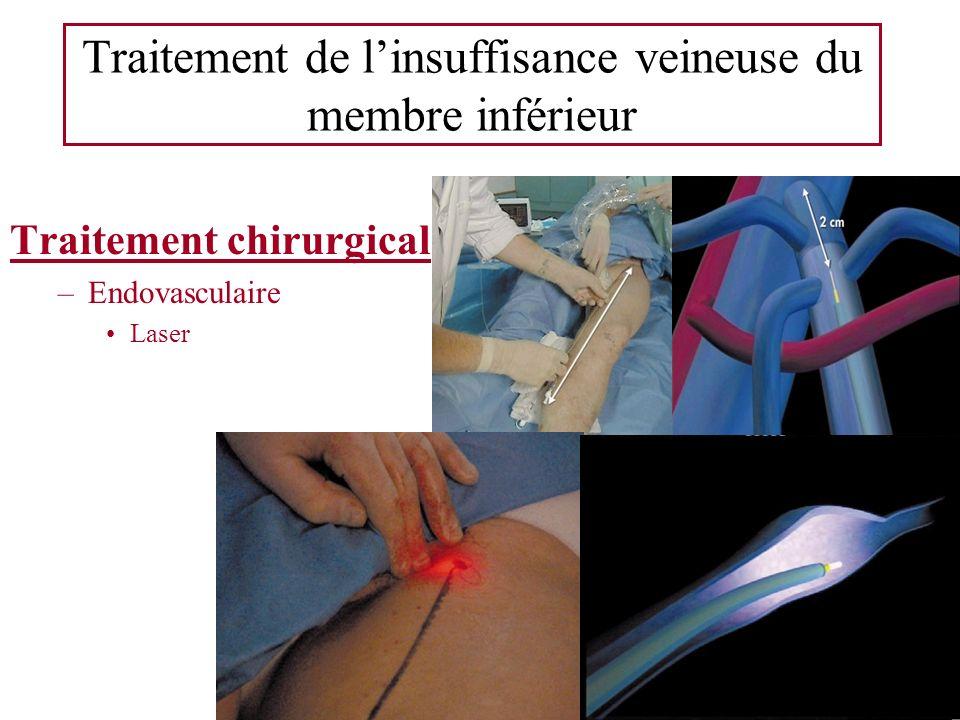 Traitement de linsuffisance veineuse du membre inférieur Traitement chirurgical –Endovasculaire Laser
