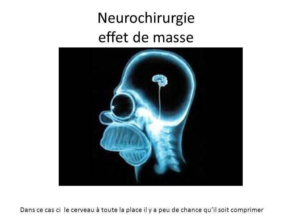Neurochirurgie effet de masse Dans ce cas ci le cerveau à toute la place il y a peu de chance quil soit comprimer