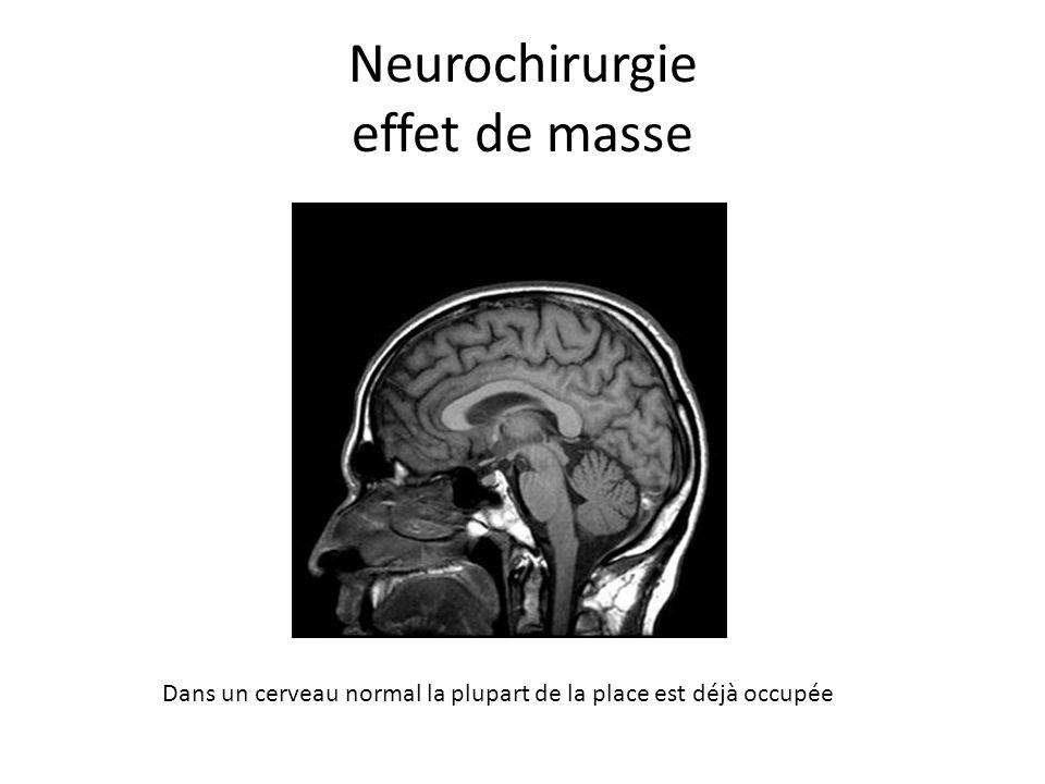 Neurochirurgie effet de masse Dans un cerveau normal la plupart de la place est déjà occupée