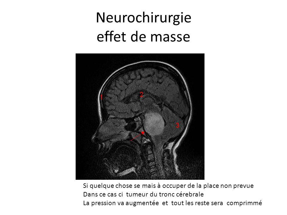 Neurochirurgie effet de masse Si quelque chose se mais à occuper de la place non prevue Dans ce cas ci tumeur du tronc cérebrale La pression va augmen
