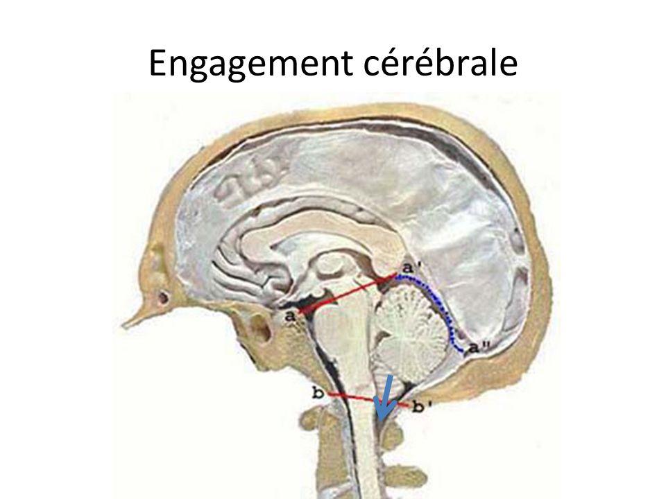 Engagement cérébrale