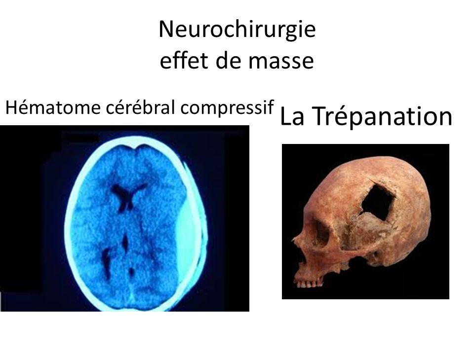 Neurochirurgie effet de masse La Trépanation Hématome cérébral compressif