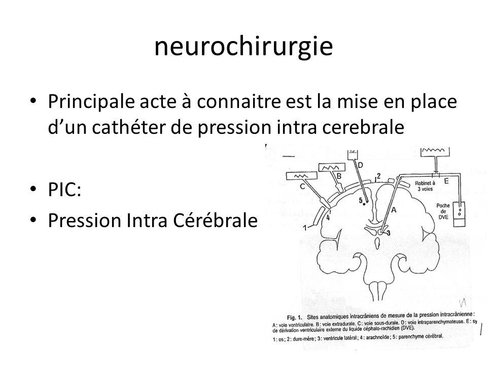 neurochirurgie Principale acte à connaitre est la mise en place dun cathéter de pression intra cerebrale PIC: Pression Intra Cérébrale