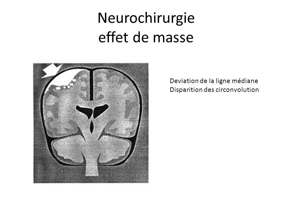 Neurochirurgie effet de masse Deviation de la ligne médiane Disparition des circonvolution