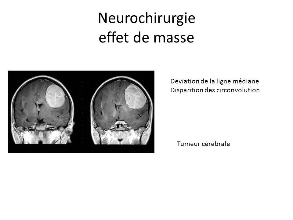 Neurochirurgie effet de masse Deviation de la ligne médiane Disparition des circonvolution Tumeur cérébrale