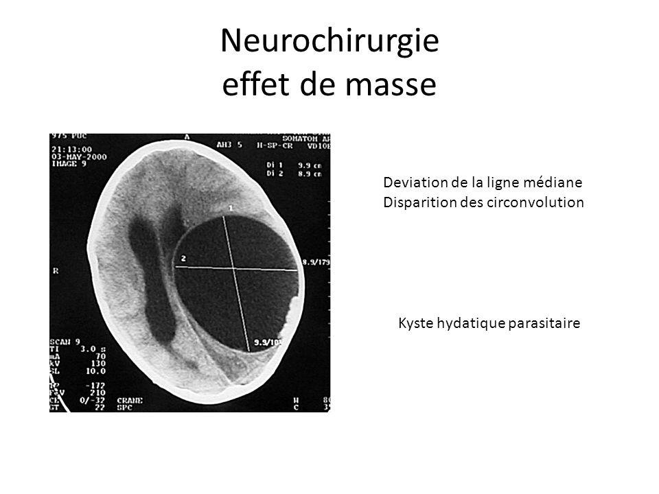Neurochirurgie effet de masse Deviation de la ligne médiane Disparition des circonvolution Kyste hydatique parasitaire