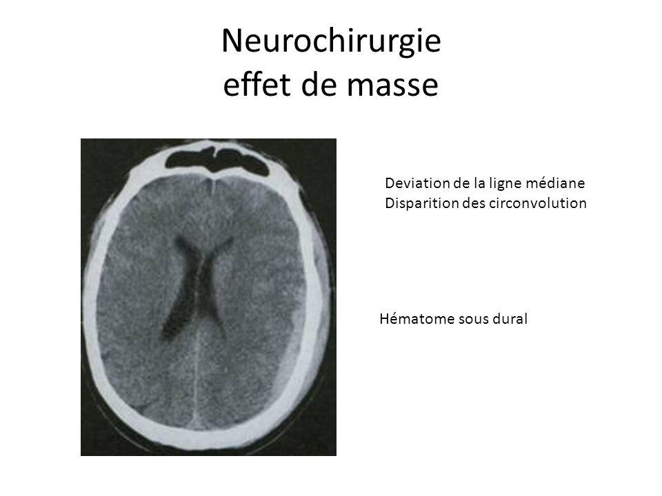 Neurochirurgie effet de masse Deviation de la ligne médiane Disparition des circonvolution Hématome sous dural