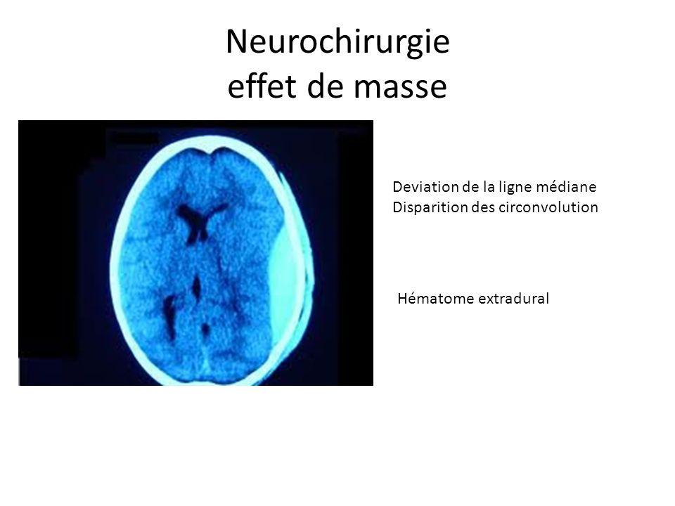 Neurochirurgie effet de masse Deviation de la ligne médiane Disparition des circonvolution Hématome extradural