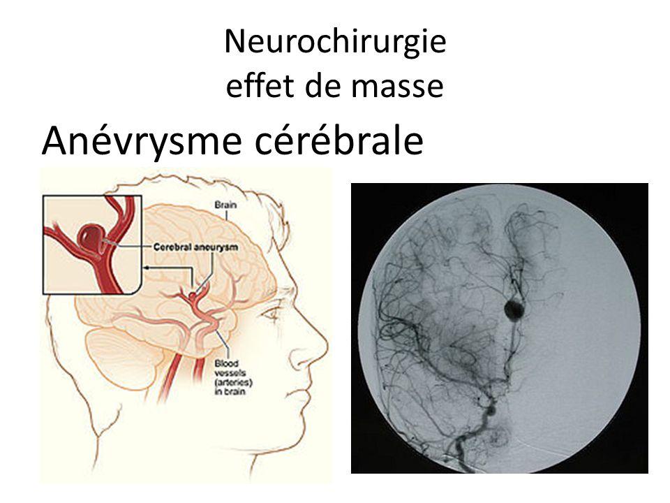 Neurochirurgie effet de masse Anévrysme cérébrale