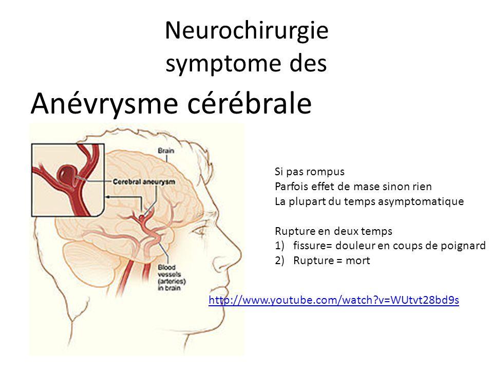 Neurochirurgie symptome des Anévrysme cérébrale Si pas rompus Parfois effet de mase sinon rien La plupart du temps asymptomatique Rupture en deux temp