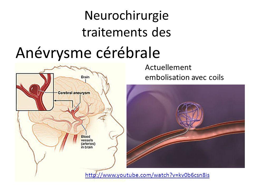 Neurochirurgie traitements des Anévrysme cérébrale Actuellement embolisation avec coils http://www.youtube.com/watch?v=kv0b6csn8is