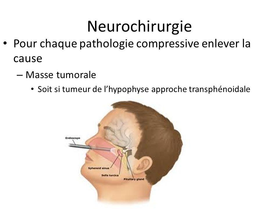 Neurochirurgie Pour chaque pathologie compressive enlever la cause – Masse tumorale Soit si tumeur de lhypophyse approche transphénoidale