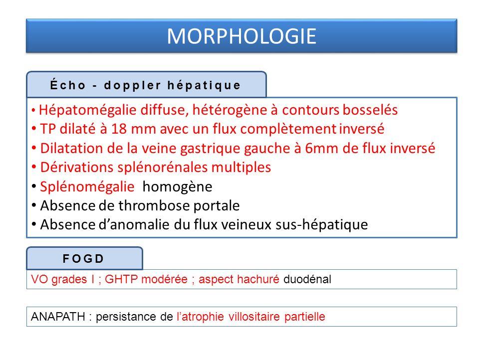 Hépatomégalie diffuse, hétérogène à contours bosselés TP dilaté à 18 mm avec un flux complètement inversé Dilatation de la veine gastrique gauche à 6mm de flux inversé Dérivations splénorénales multiples Splénomégalie homogène Absence de thrombose portale Absence danomalie du flux veineux sus-hépatique MORPHOLOGIE Écho - doppler hépatique VO grades I ; GHTP modérée ; aspect hachuré duodénal FOGD ANAPATH : persistance de latrophie villositaire partielle