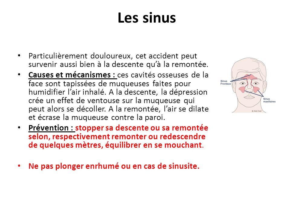 Les sinus Particulièrement douloureux, cet accident peut survenir aussi bien à la descente quà la remontée.