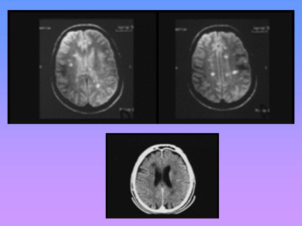 Quel est votre principale hypothèse diagnostique et quels examens demanderez- vous ? Quelles sont les contre-indications de lexamen radiologique que v