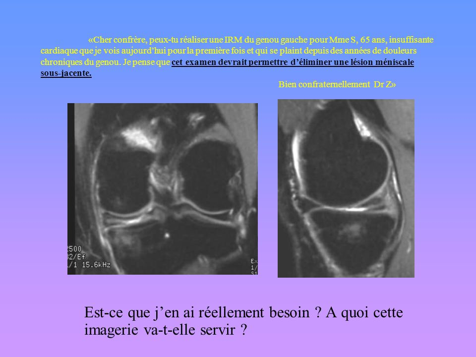 «Cher confrère, peux-tu réaliser une IRM du genou gauche pour Mme S, 55 ans, que je vois aujourdhui pour la première fois et qui se plaint depuis des